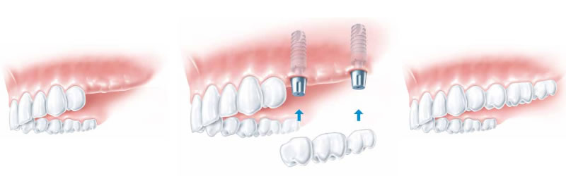 implant-several-missing-teeth