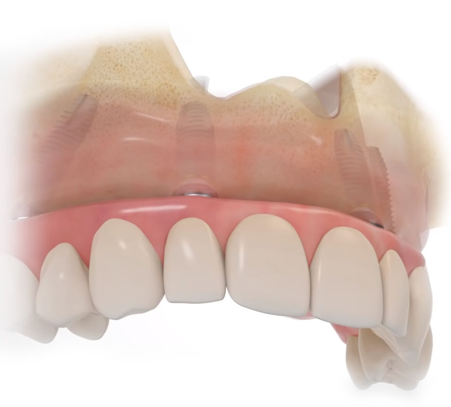 implant-overdenture-all-on-4-diagram